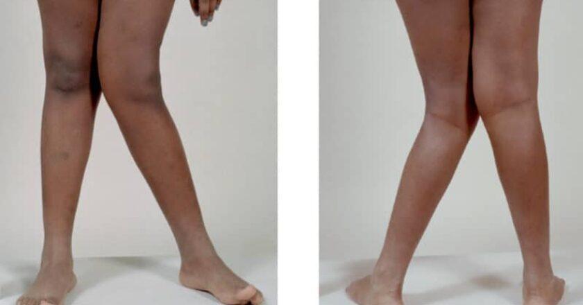 De surprenants secrets se cachent derrière les femmes qui ont «les pieds X»