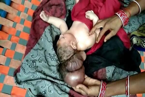 la naissance d'un bébé à 3 têtes fait objet de pèlerinage et de bénédiction